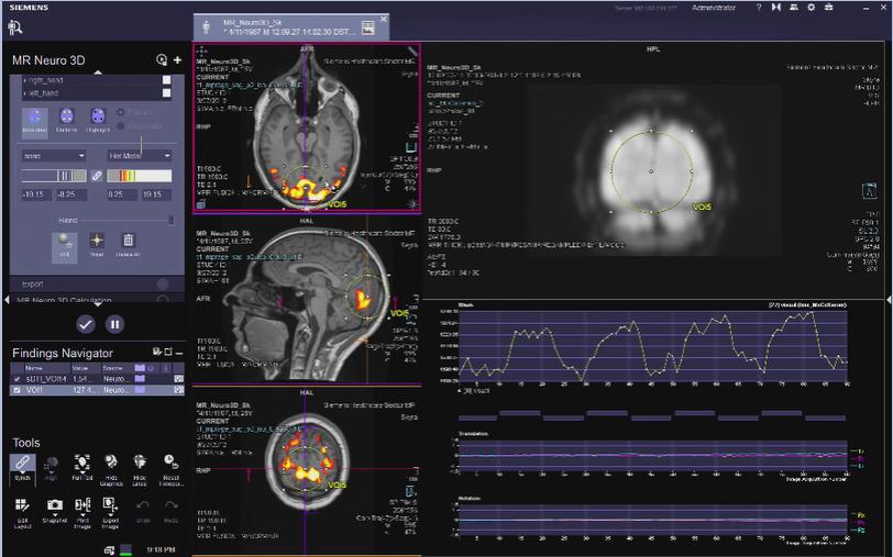 MR Neuro 3D Reading: Reporting VB30