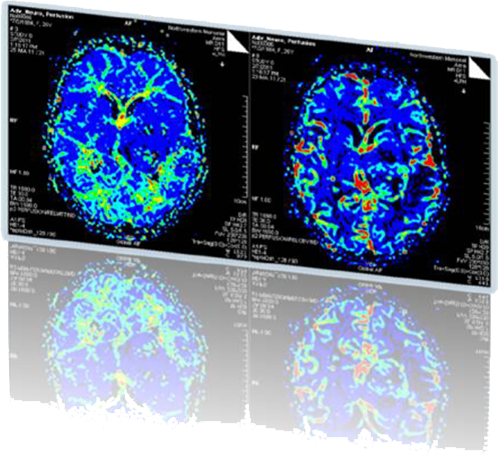 MRI Brain Perfusion and Arterial Spin Labeling (ASL)