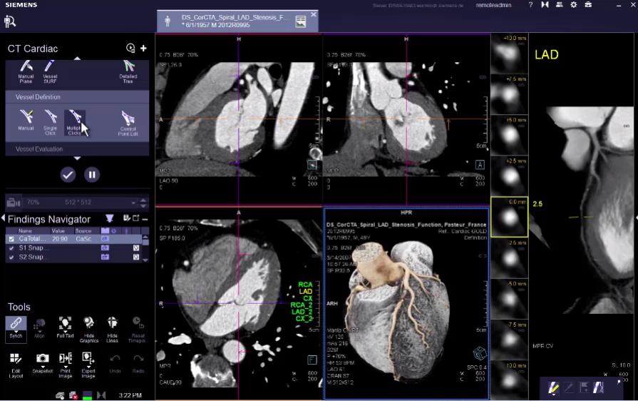 CT Coronary VB30