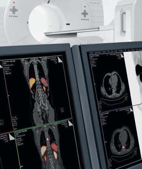 PET image Sequence Order - Biograph mCT and Horizon