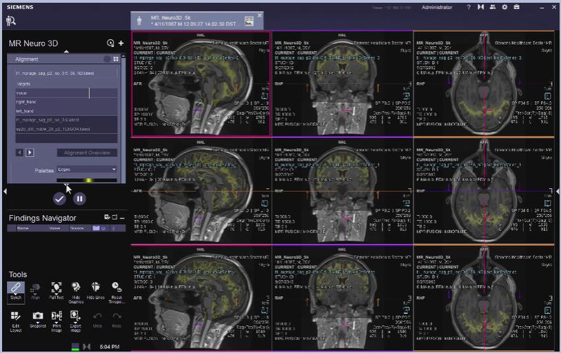 MR Neuro 3D Reading: fMRI VB30