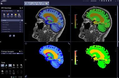 MR Neurology: Brain Morphometry VB30