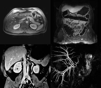 MR Body Imaging - Part 1