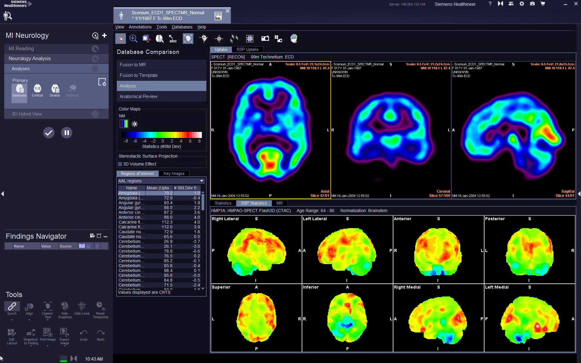 MI Neurology-Database Comparison VB30