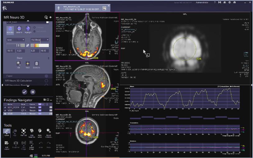 MR Neuro 3D Reading: Export VB30