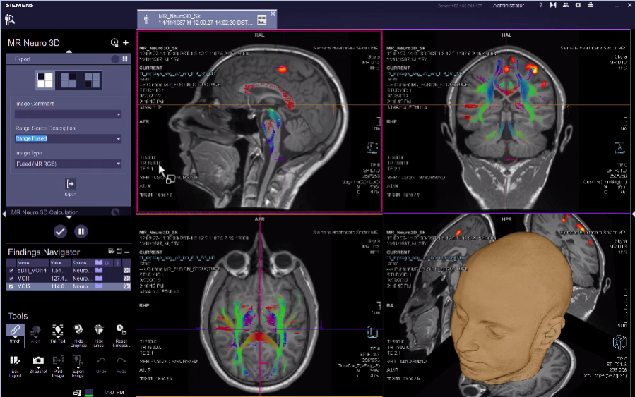 MR Neuro 3D Calculation: Offline BOLD VB30