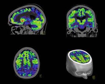 PET Imaging in Neurology