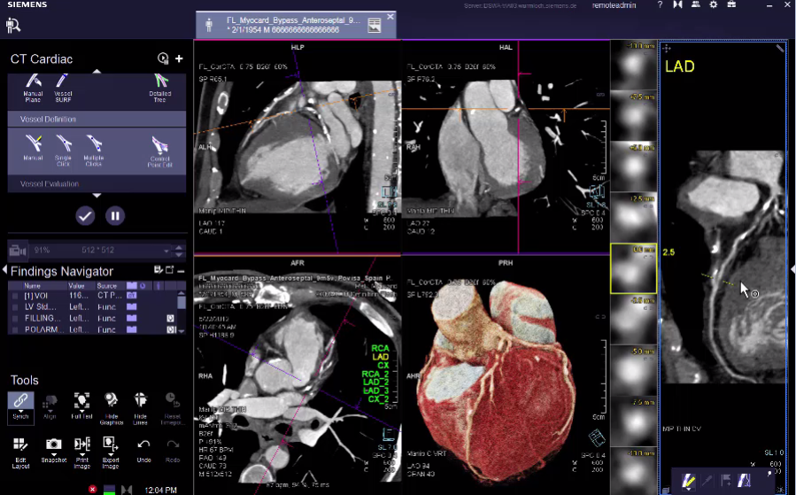 CT Myocardial Perfusion Overview VB30