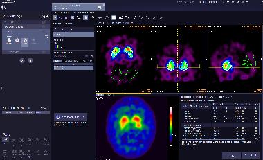 MI Neurology-Striatal Analysis VB30