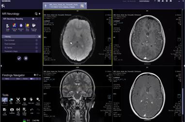 MR Neurology Reading VB30