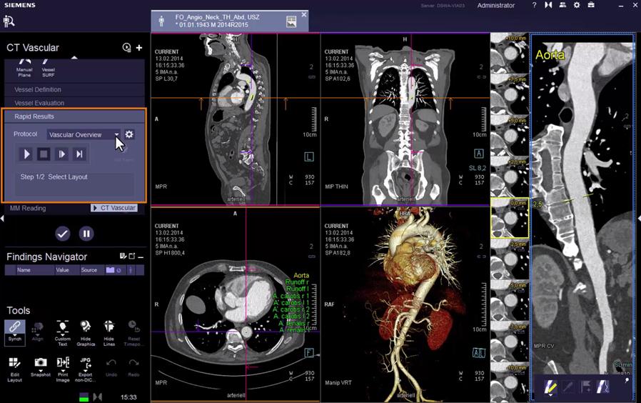 CT Vascular: Additional Processing VB30