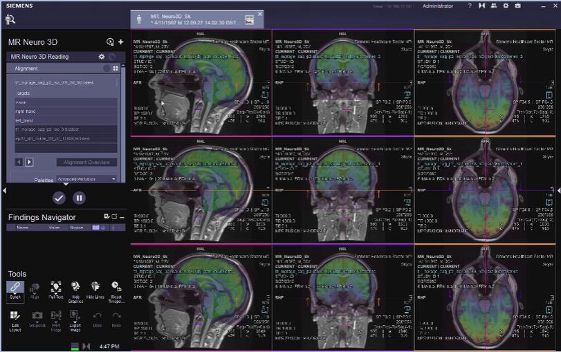 MR Neuro 3D Reading: Alignment VB30
