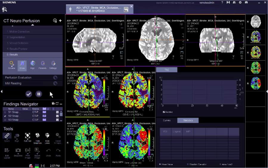 Neuro Perfusion Maps Evaluation VB30