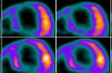 Fundamentals of PET CT Cardiac Imaging