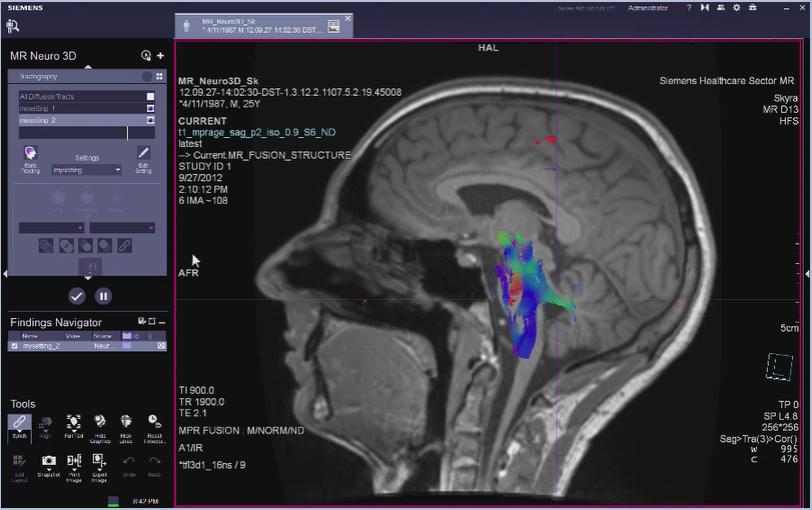MR Neuro 3D Reading: Diffusion Evaluation VB30