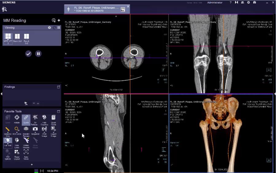 CT Vessel Extension (MM Reading) VB30