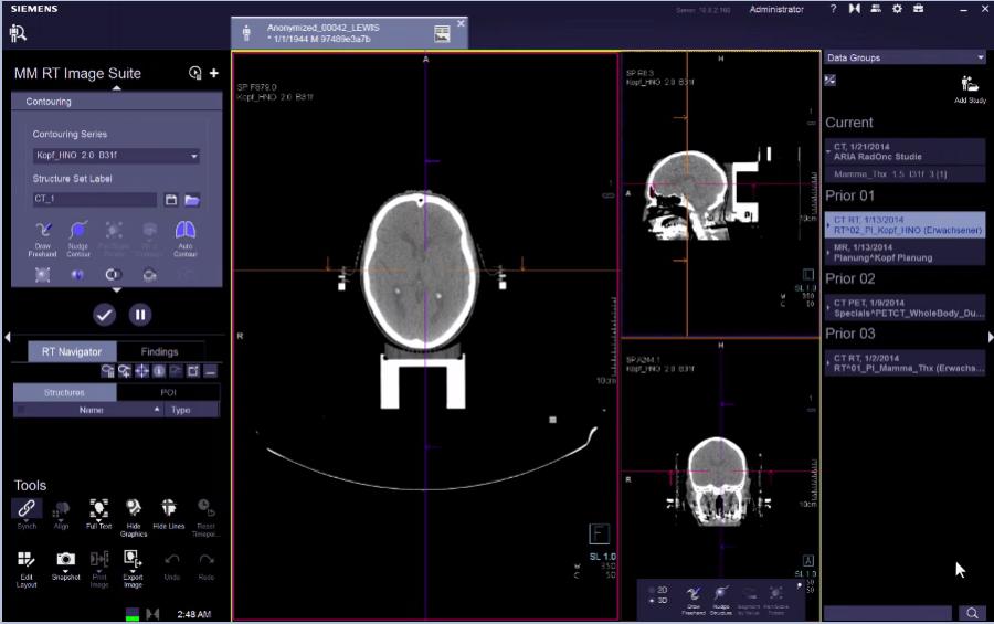 MM RT Segmentation and 4D Contouring VB20 e-Clip