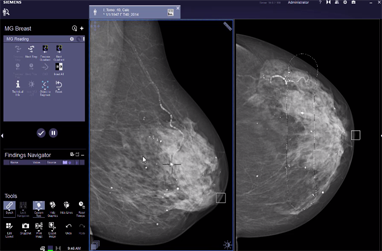 MG Breast Care Link-it VB30