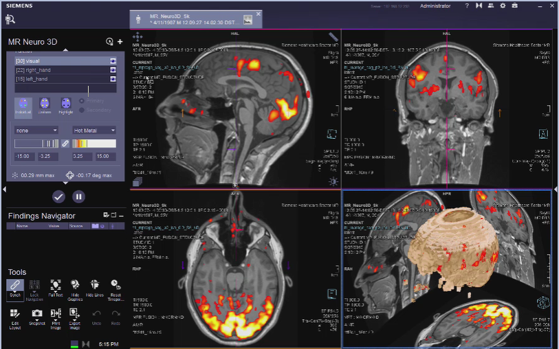 MR Neuro 3D Reading: Images Selection VB30