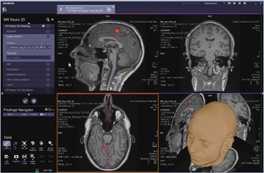 MR Neuro 3D Reading: Tractography VB30