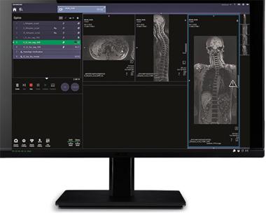 Getting Started - Single Monitor (Numaris X)