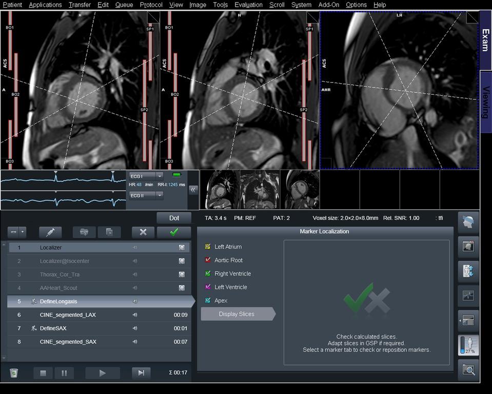 Cardiac Dot Engine