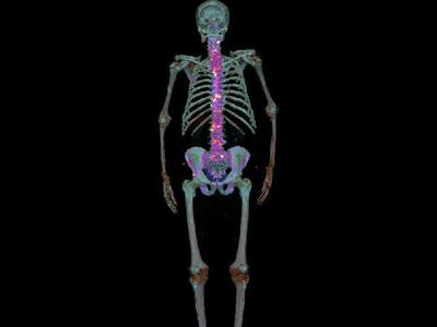 PET F18 Bone Imaging