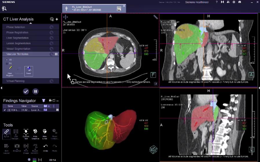CT Liver Analysis: Virtual Planning Evaluation VB30